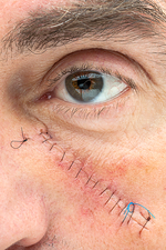 Basal cell carcinoma treatment