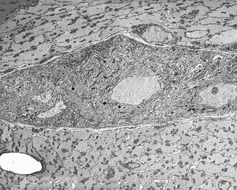 Myenteric nerve plexus, TEM