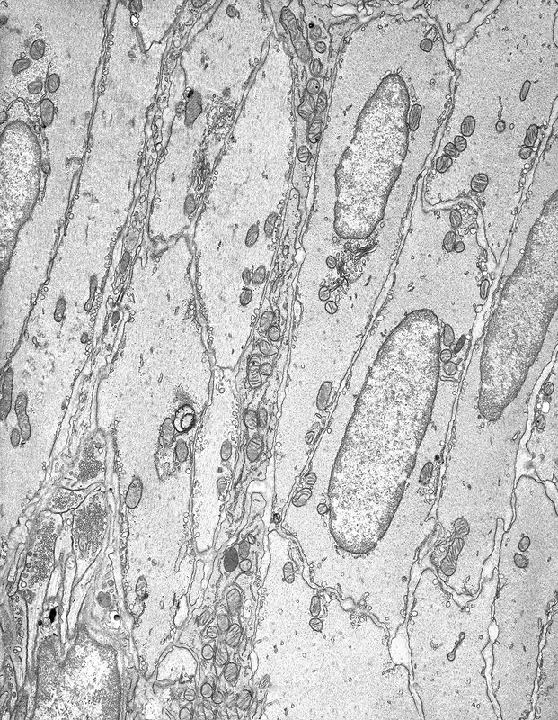 Smooth muscle tissue, TEM