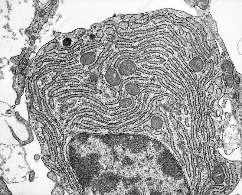 Rough endoplasmic reticulum, TEM