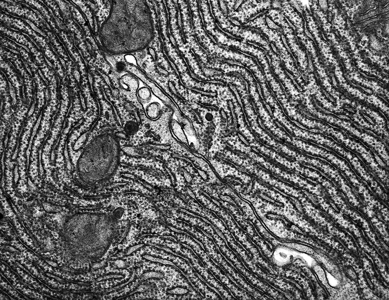 Rough Endoplasmic Reticulum Micrograph Pictures to Pin on ...