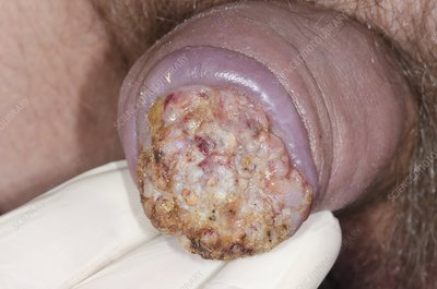 Fungating penile skin cancer