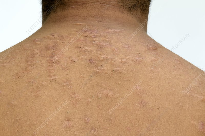 Cystic Acne On The Shoulders Stock Image C015 1624 Science Photo Library