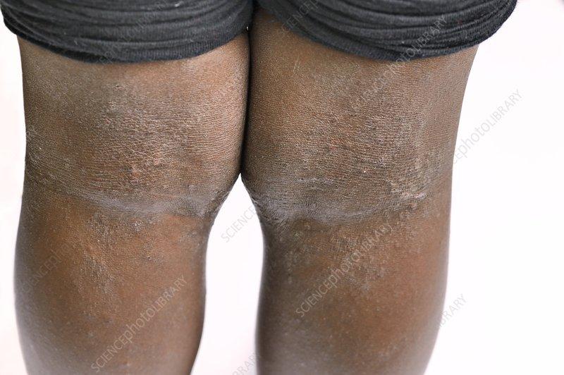 eczema on legs black people - photo #47