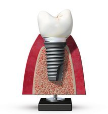 Dental implant, artwork