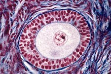 Ovarian follicle, light micrograph