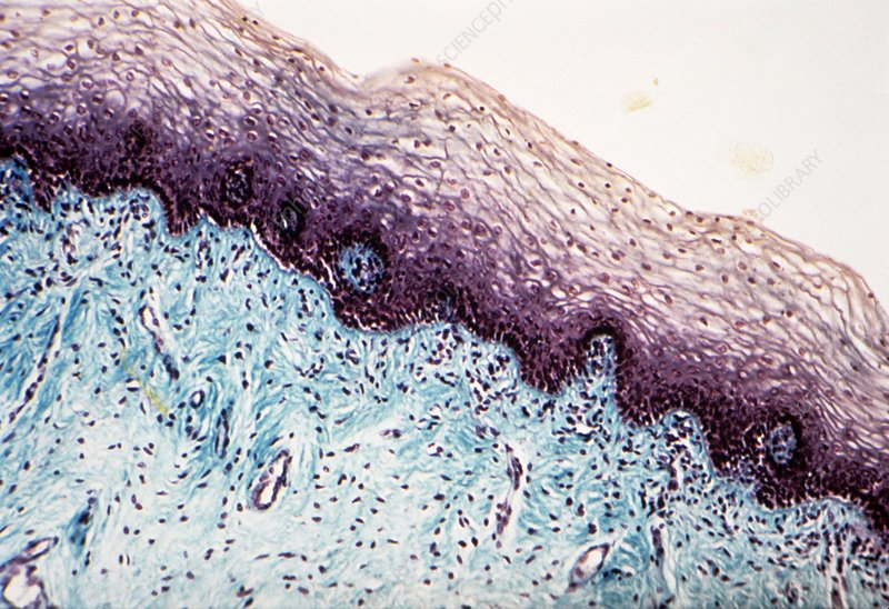 Vaginal mucosa, light micrograph