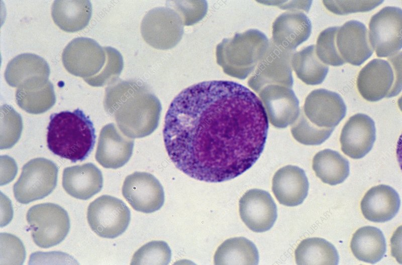Promyelocyte blood cell, light micrograph