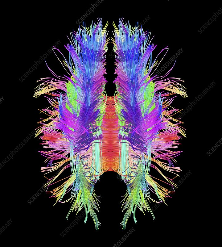 White matter fibres and brain, artwork