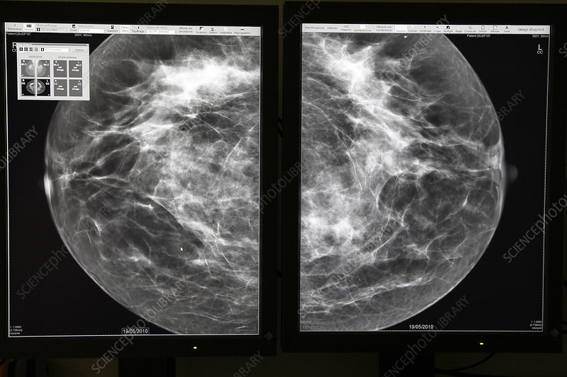 mammography result
