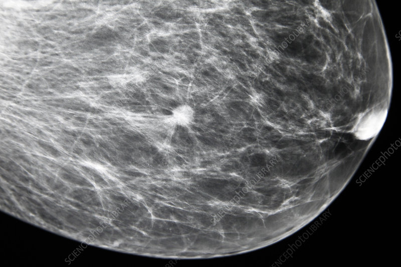 breast tumor, x-ray