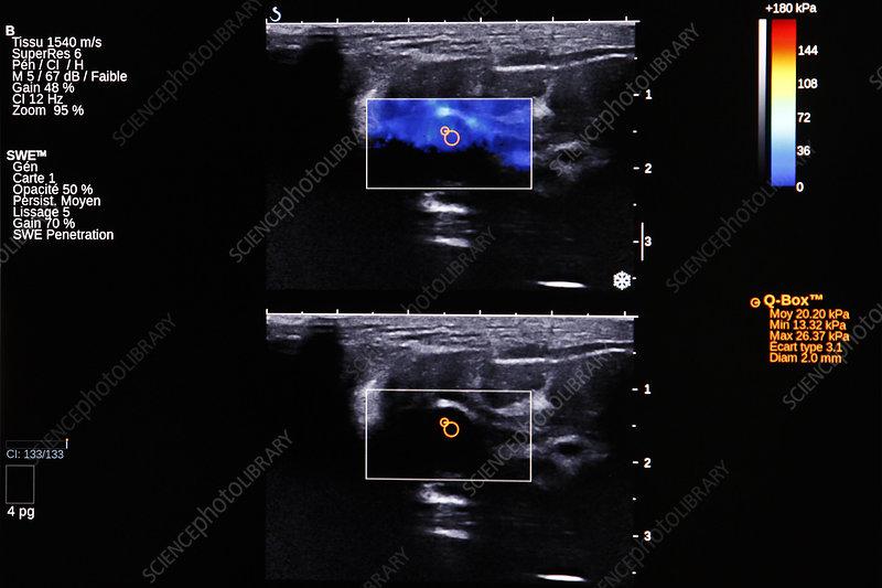 adenoma of the breast