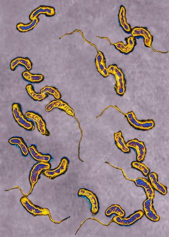Cholera bacteria, TEM