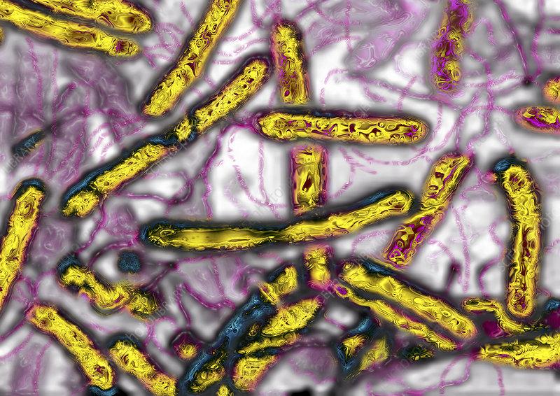 Helicobacter pylori bacteria, TEM