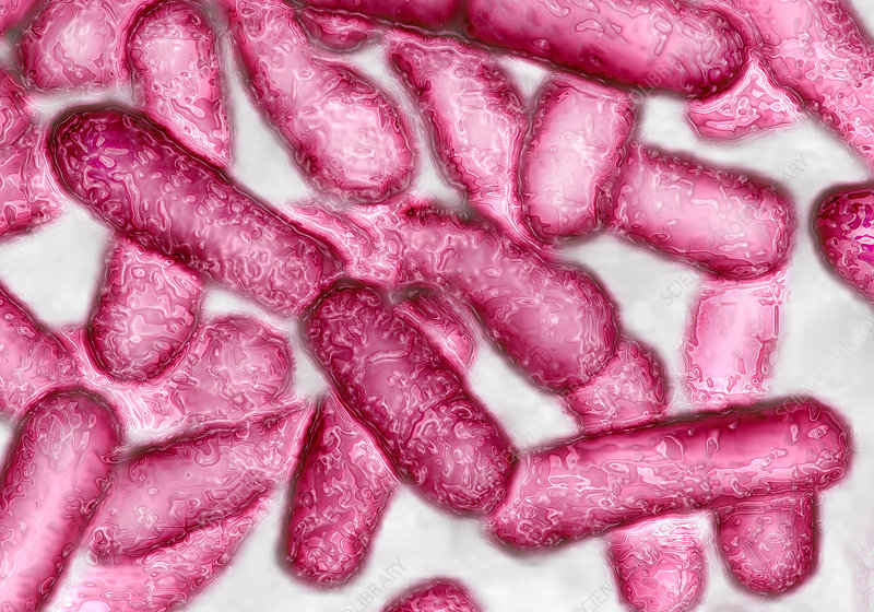 Legionella bacteria, TEM