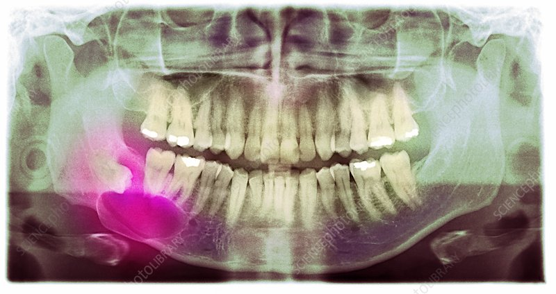 Impacted wisdom tooth, panoral X-ray