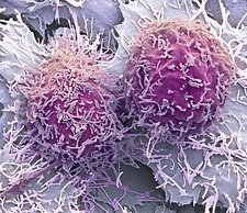 Liver cancer cells, SEM