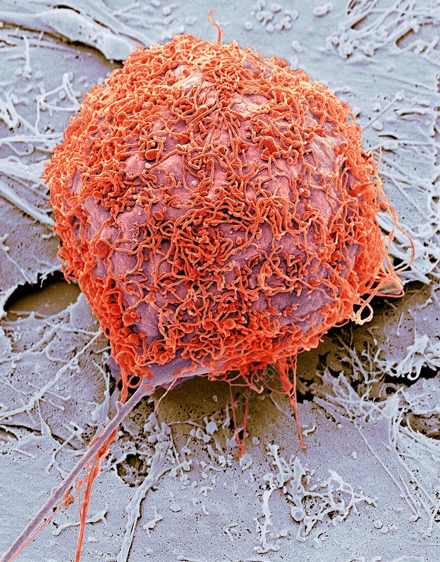 Bone cancer cell, SEM