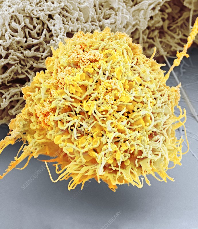 Vaginal cancer cell, SEM