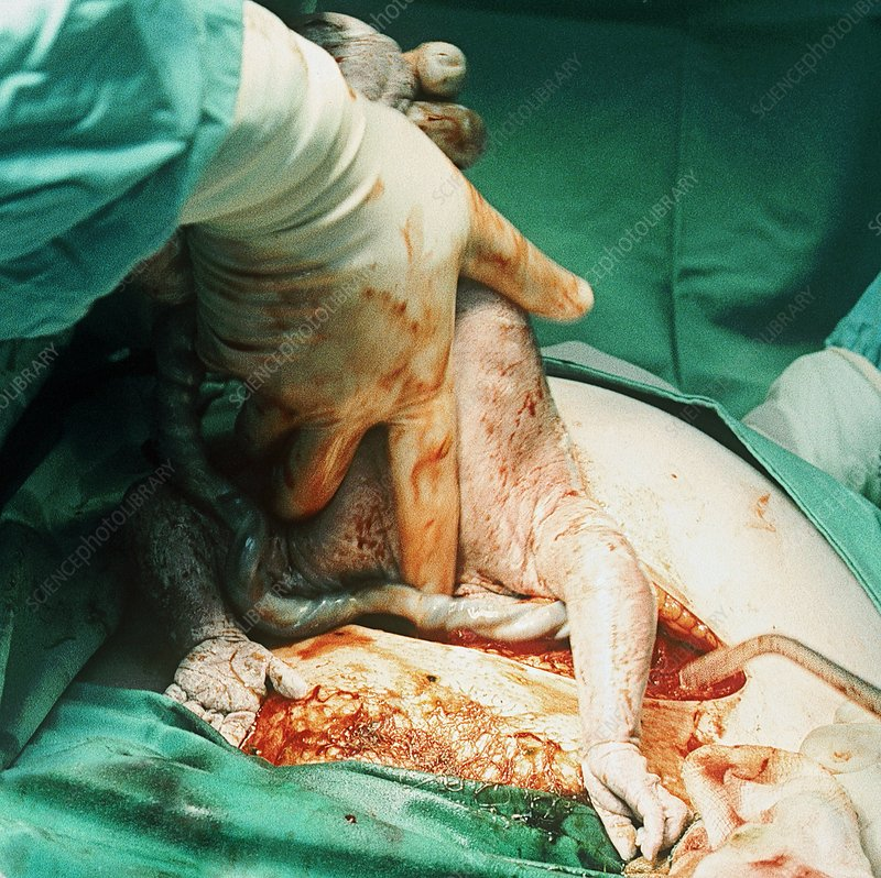 Caesarean section
