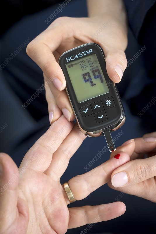 Diabetes clinic, blood sugar test