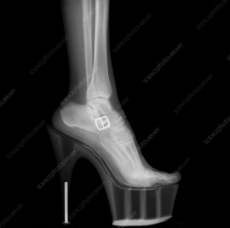 Stiletto High-Heeled Shoe