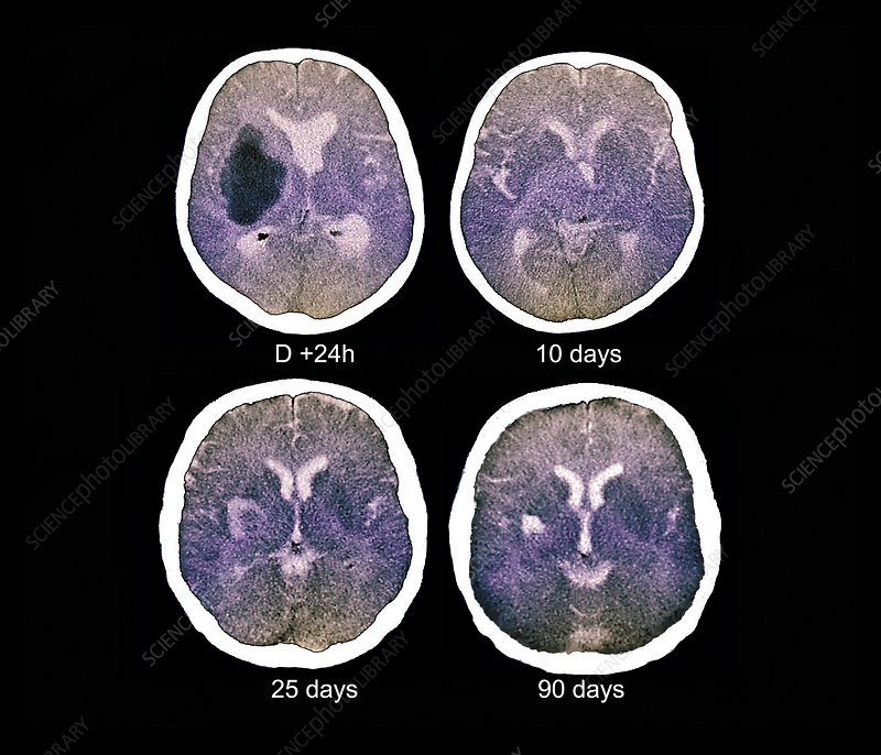 Stroke, CT scans