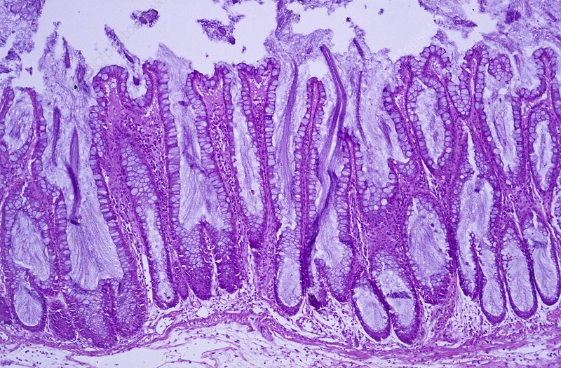 Colitis, light micrograph