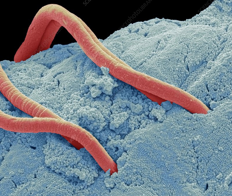 Threadworms in the gut, SEM