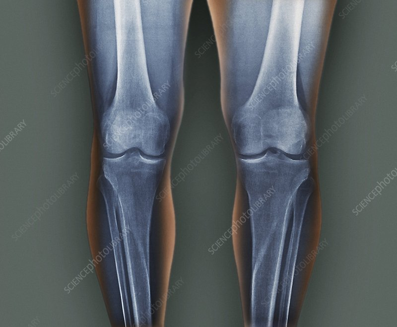 Normal knees, X-rays
