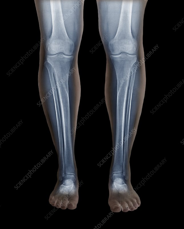 Normal legs, X-rays