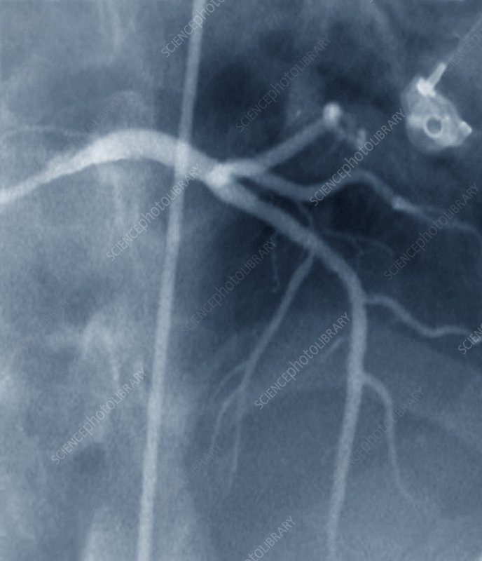 Coronary stenosis after treatment, X-ray