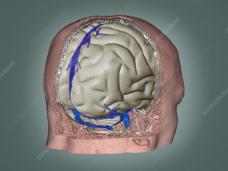 Thrombophlebitis in the brain, 3D CT scan