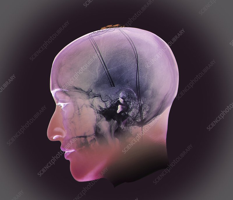 Deep brain stimulation, X-ray