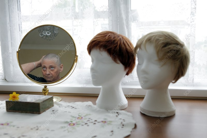 Chemotherapy patient and wigs