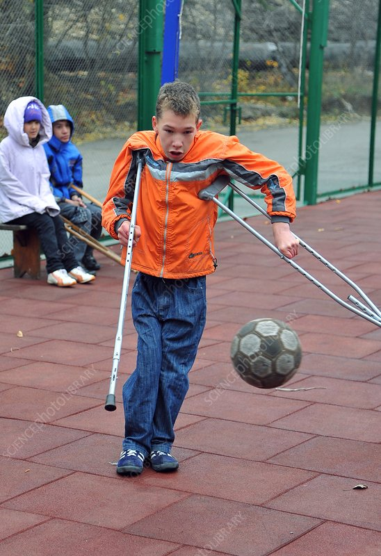 Disabled boy playing football