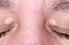 Xanthelasma on the eyelids