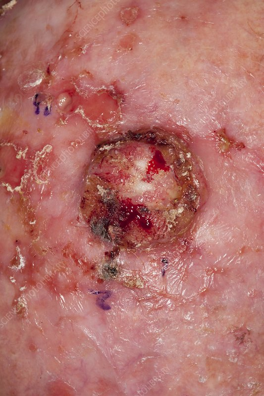 Squamous skin cancer on the scalp