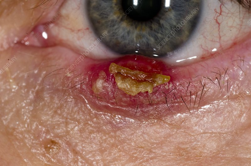 Meibomian abscess in lower eyelid