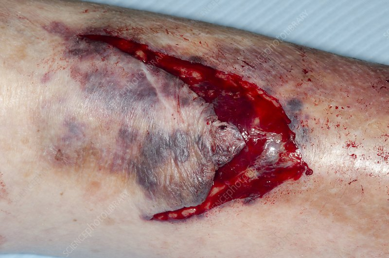Laceration of shin from a fall