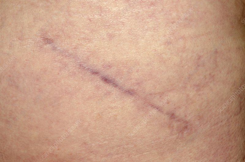 Scar after hip replacement surgery