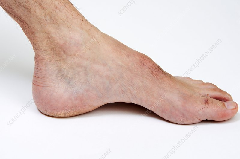 Arched foot in Charcot-Marie disease