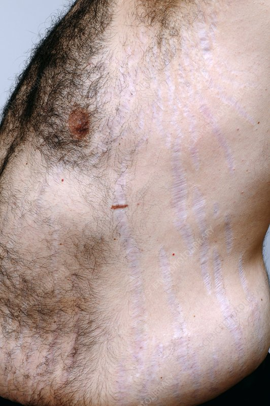 Stretch marks in Cushing's syndrome