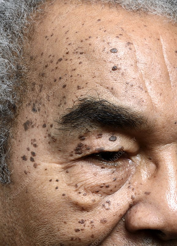 DPN skin lesions on the face