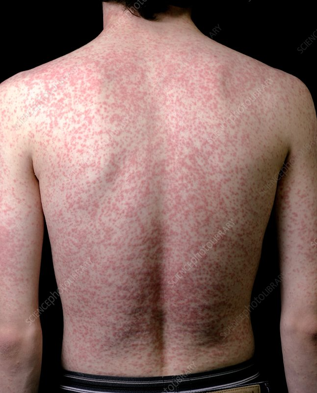 Body rash caused by antibiotic drug
