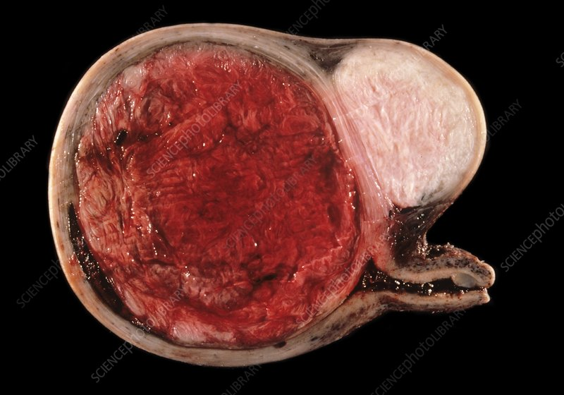 Uterine fibroid