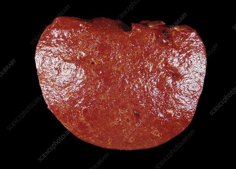 Spleen Cancer Gross Specimen Stock Image C0156421 Science