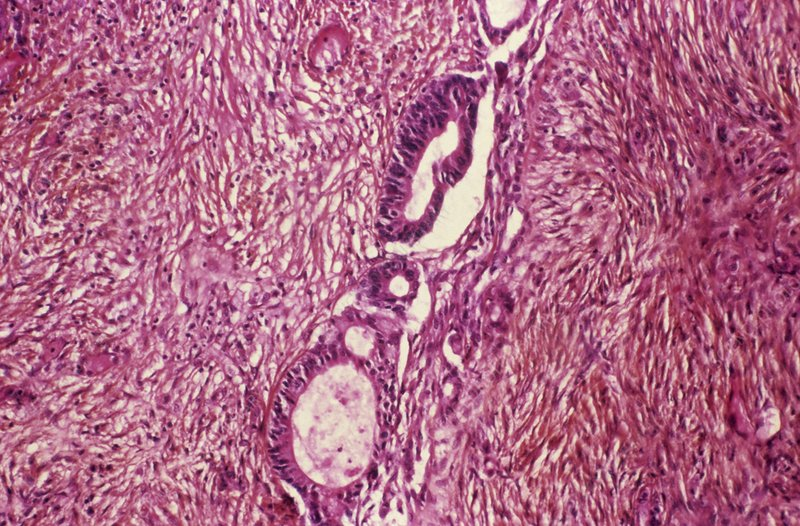 Ovarian cancer, light micrograph