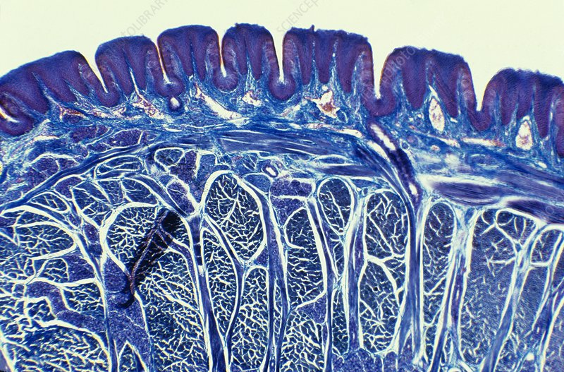 Tongue, light micrograph