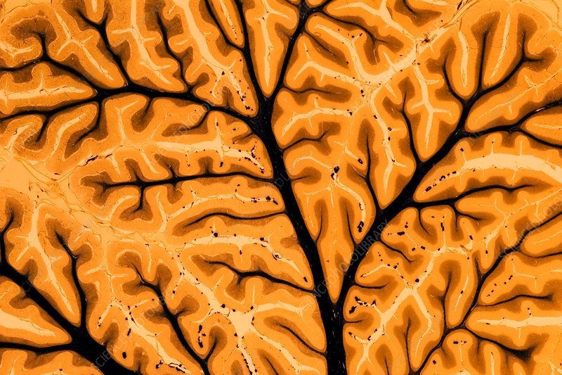 Cross section of human brain